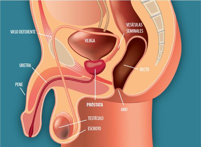 hernias después de una cirugía de próstata
