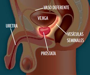 sangre en la orina después de la cirugía de próstata por cuánto tiempo