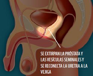 Una PSA alta indica que el cáncer de próstata se ha diseminado