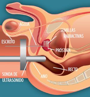 cáncer de próstata que síntomas dana