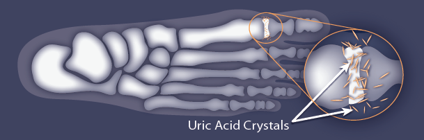Image of foot with uric acid crystals in joint of big toe