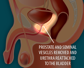 Image showing after surgery to remove the prostate gland, with prostate and seminal vesicles removed and urethra reattached to the bladder.
