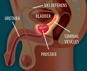 Image showing before surgery to remove the prostate gland.